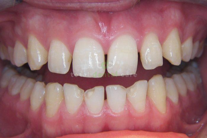 Nieinwazyjna rekonstrukcja dolnych zębów. - Przed