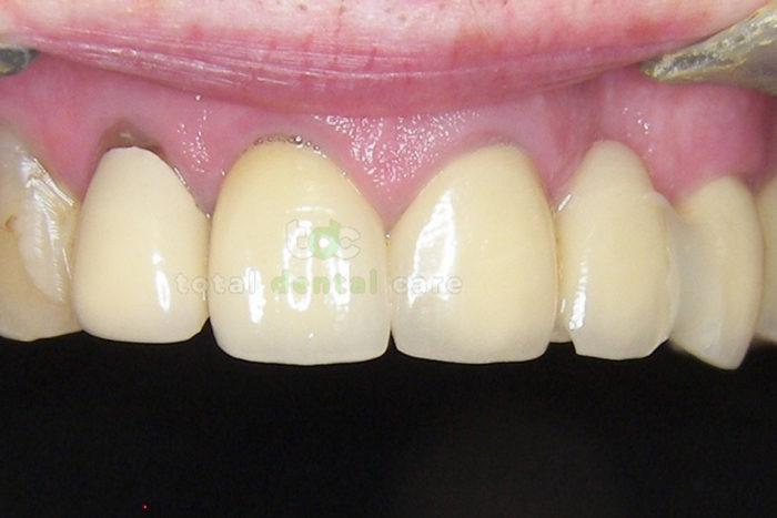 Rekonstrukcja górnego łuku zębowego. - Przed