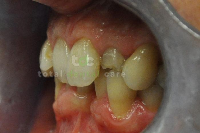 Odbudowa złamanego zęba pełnoceramiczną koroną - Przed