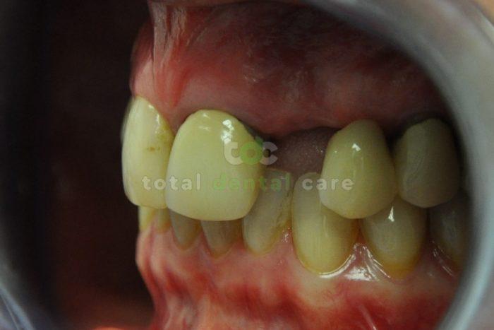 Rekonstrukcja górnego łuku zębowego przy pomocy pełnoceramicznego mostu - Przed