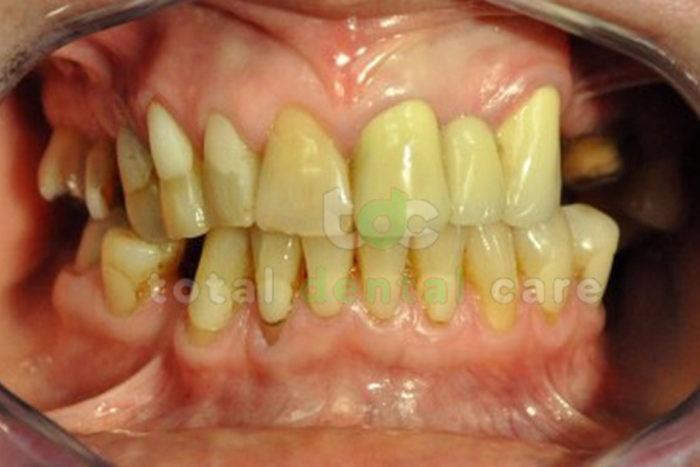 Rekonstrukcja górnego łuku zębowego - Przed