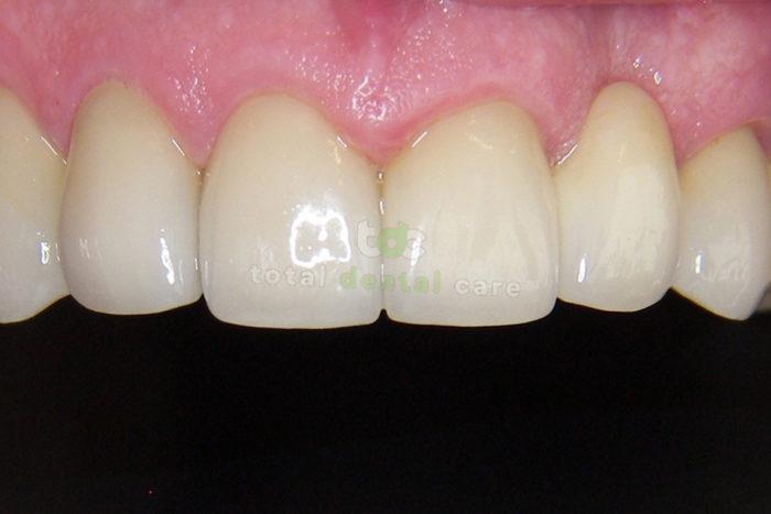 Rekonstrukcja górnego łuku zębowego.