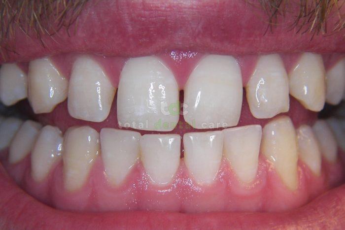 Nieinwazyjna rekonstrukcja dolnych zębów.