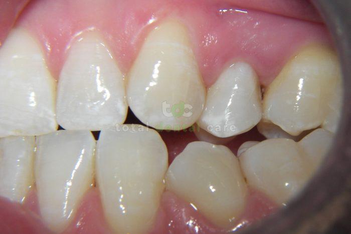 Wibielanie przebarwionego zęba po leczeniu kanałowym