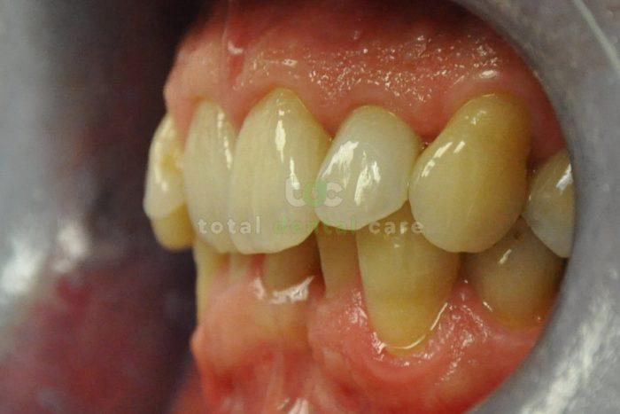 Odbudowa złamanego zęba pełnoceramiczną koroną