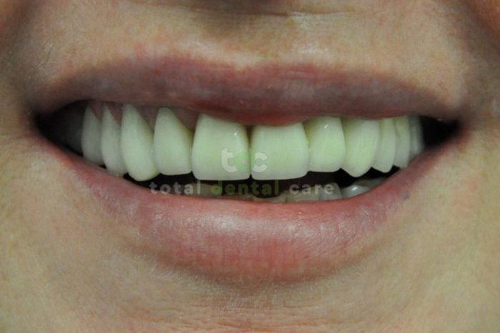 Rekonstrukcja górnego łuku zębowego