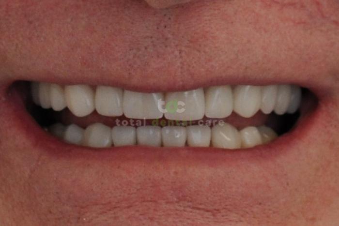 Pełna rekonstrukcja górnego idolnego łuku zębowego