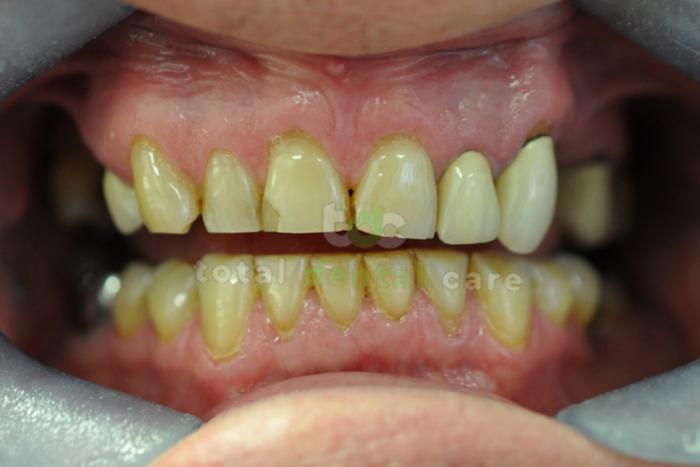 Pełna rekonstrukcja górnego idolnego łuku zębowego - Przed
